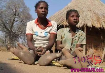 长相最怪异的部落:长了2个鸵鸟一样脚趾,当地人认为是神的恩赐