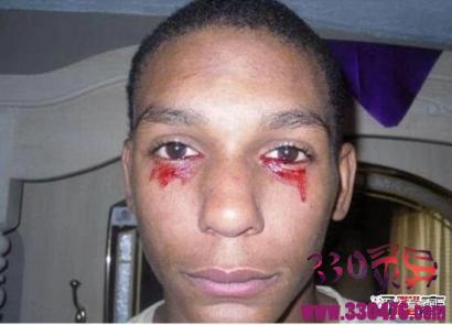 美国15岁流血泪的少年卡尔诺·英曼,眼睛每天流血三小时(超恐怖泪血症)