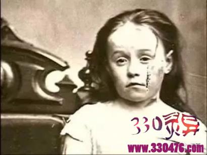 小女孩Mary Ellen Wilson用自己的遭遇,改变了无数被虐待儿童的命运...