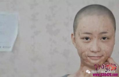 """""""泼硫酸案""""只因女服务员说他是社会渣子,他就用硫酸泼了40多名妇女的脸"""