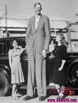罗伯特·潘兴·瓦德罗:世界上最高的男人,8岁就有1米88,死后棺材要3米3…