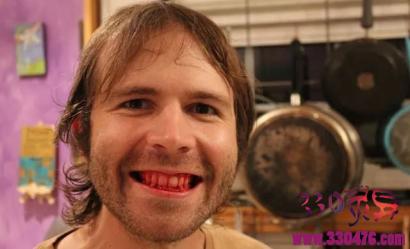 现实版丧尸,美国男子Derek三餐只吃生肉......