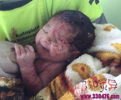 孕妇死后生子
