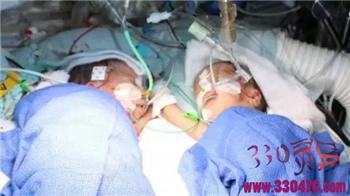 孟加拉杰苏丹娜头胎25天后又产下龙凤胎 体内两个子宫医院竟毫无察觉?