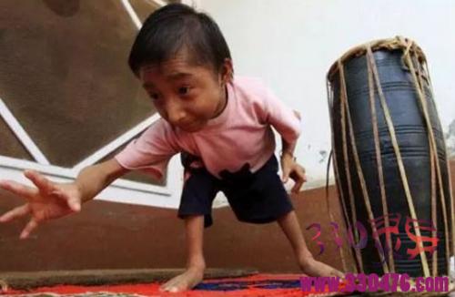 尼泊尔马加尔,20岁体重仅仅12斤,还在上幼儿园!